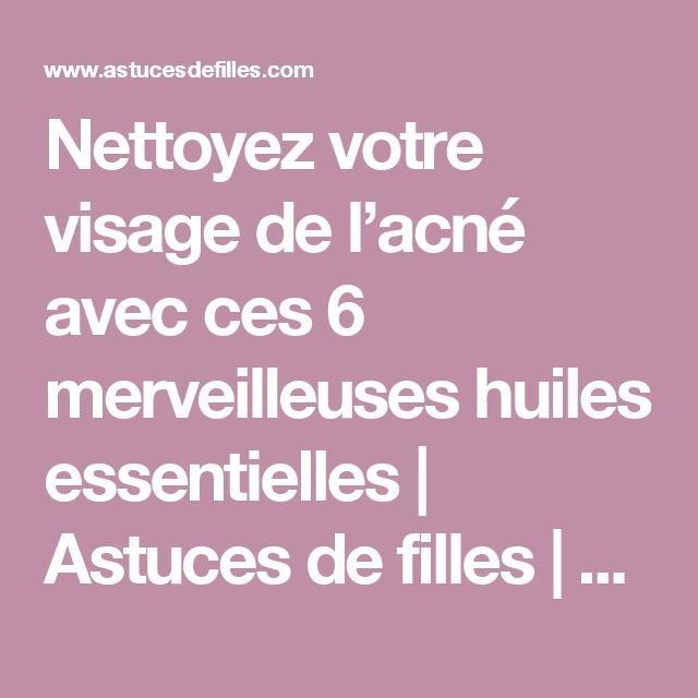Nettoyez votre visage de l'acné avec ces 6 merveilleuses huiles essentielles | Astuces de filles | Page 8