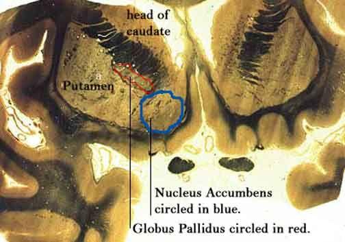 Human brain anatomy - corpus striata (basal ganglia) coronal ...