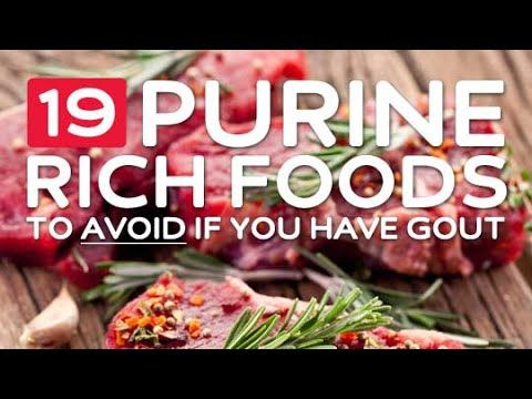 What Foods To Avoid With Gout 19 High Purine Foods To Avoid If You Have Gout What Causes Gout Gout Recipes Gout Diet Gout Remedies