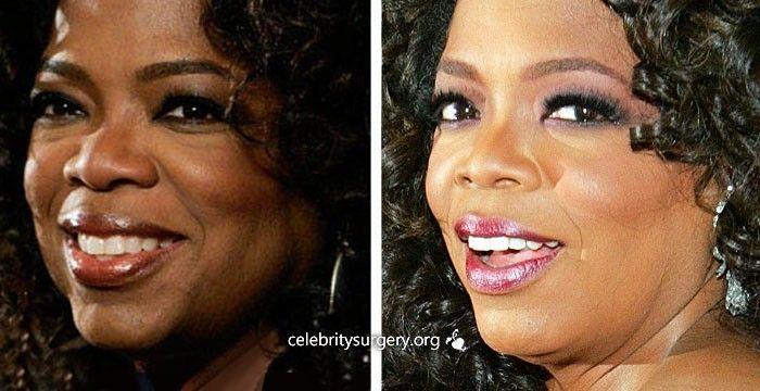 Oprah winfrey facial tucks