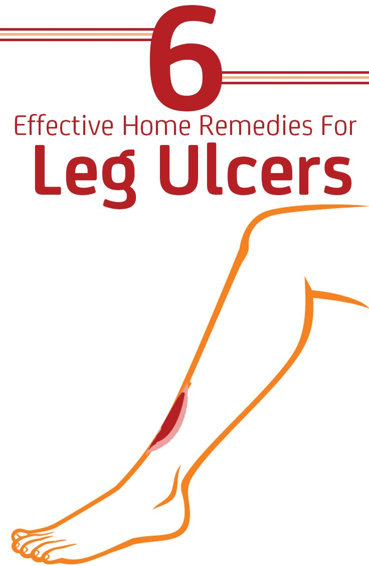 leg ulcers Varicose veins can worsen over time, but when blood clots develop, the health issues can be truly critical many are unaware of the dangers unhealthy.