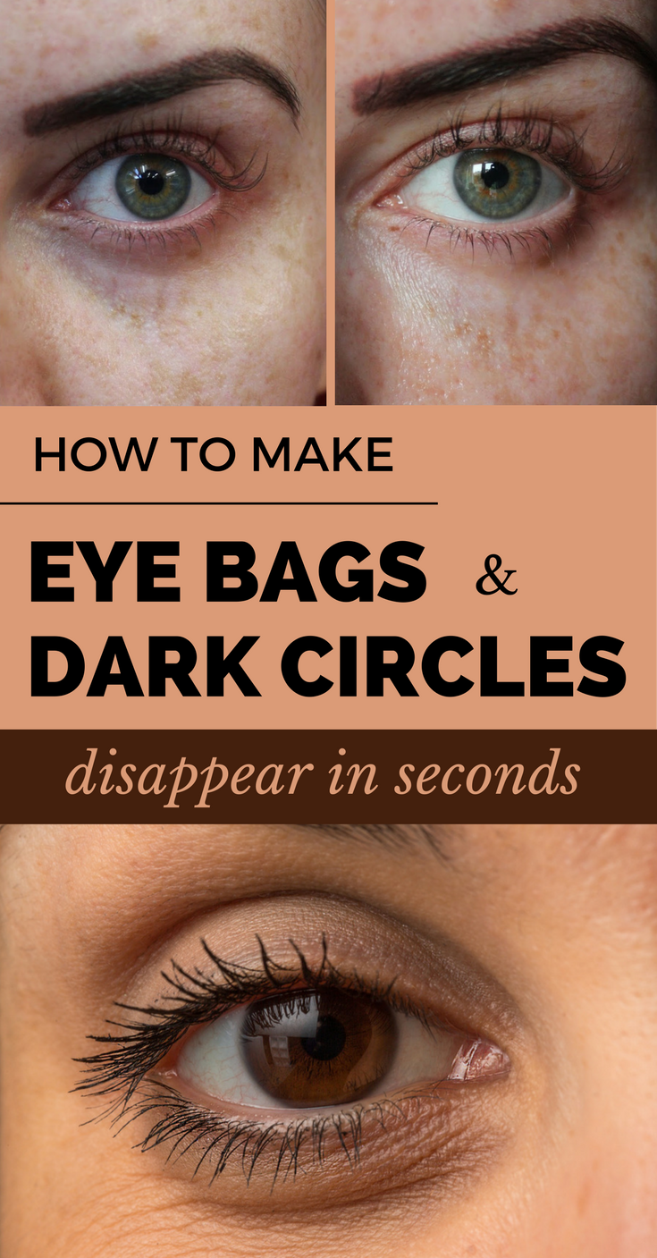 How to Make Eye Bags and Dark Circles Disappear in Seconds ...