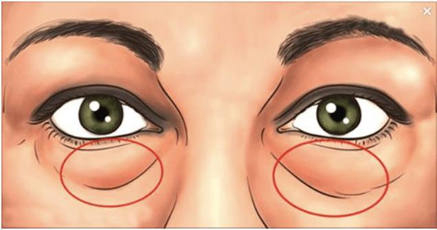 Como quitar las bolsas delos ojos por genetica