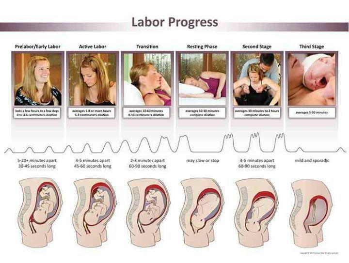 Progreso del parto