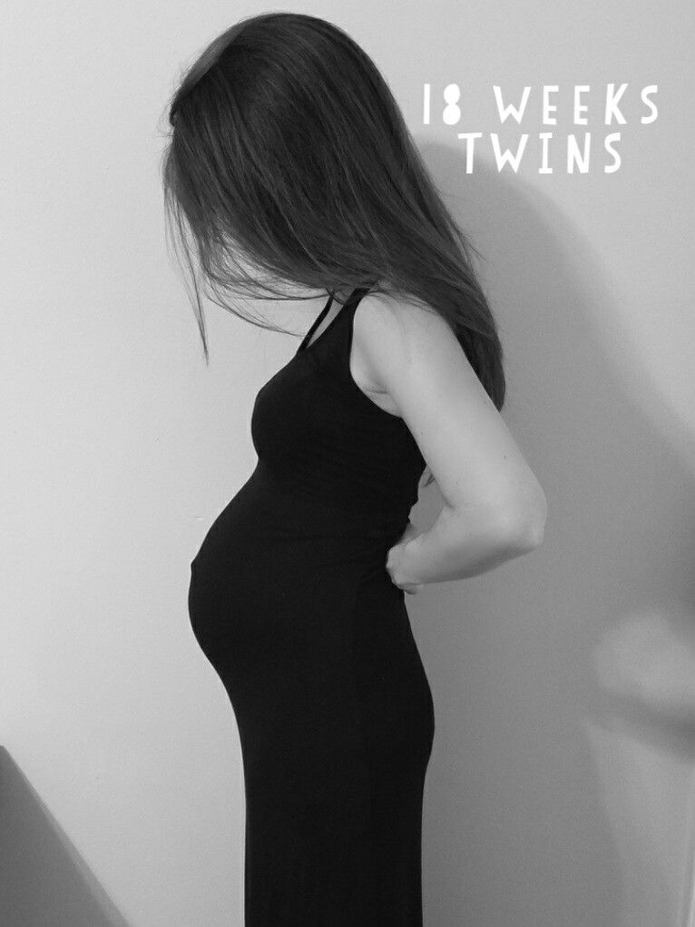 18 weeks pregnant with twins. Babies are over half pound each, very active  in morning and late night. We had to evacuate from hurricane matthew.