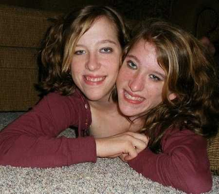 Conjoined twins hensel dating advice