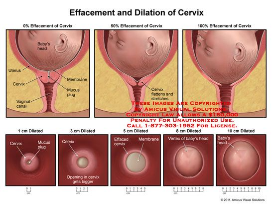 Natural Ways To Open Cervix
