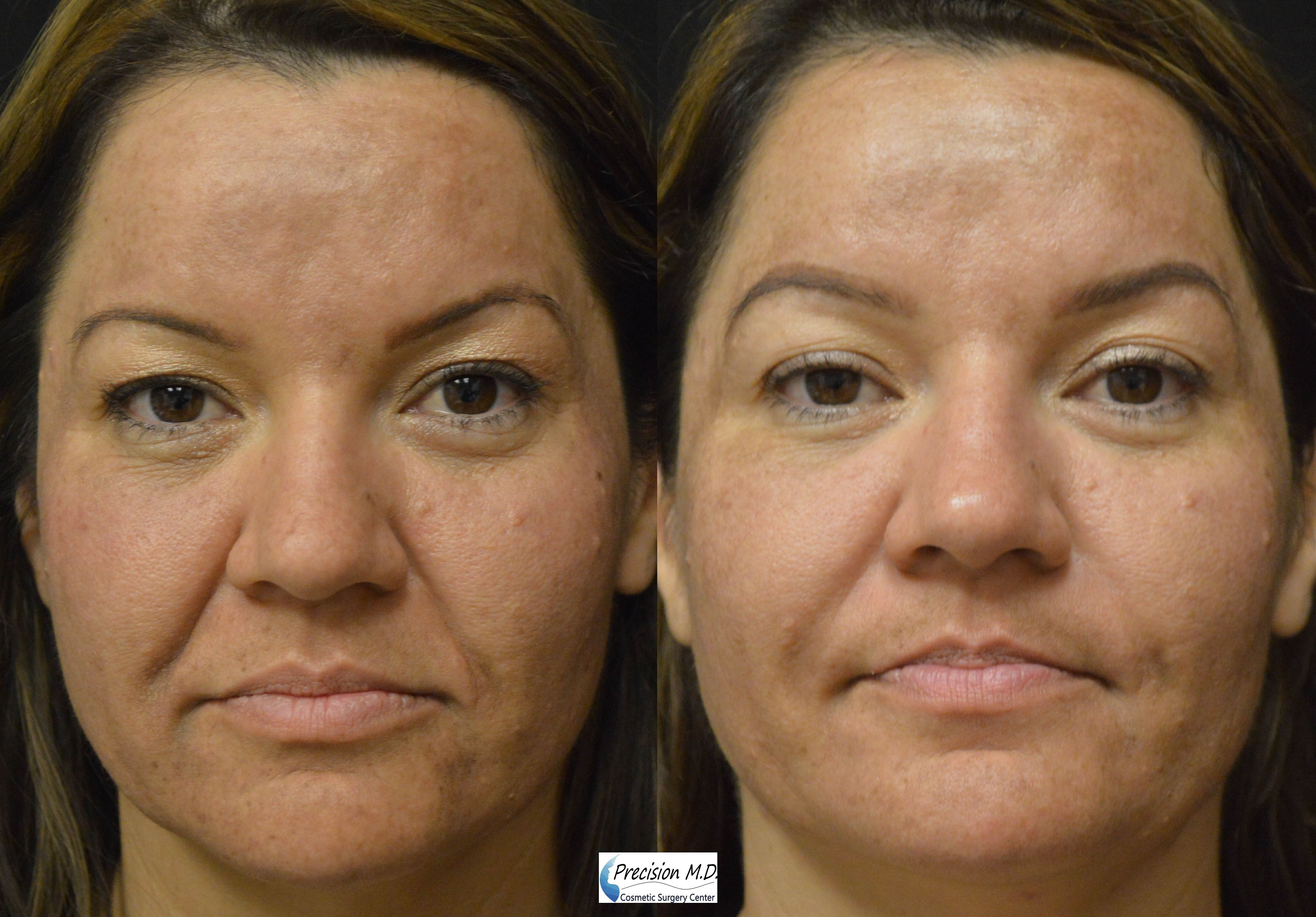 Clear Brilliant Sacramento Facial Rejuvenation Sacramento Daily Skin Care Regimen Facial Rejuvenation Skin Care Regimen