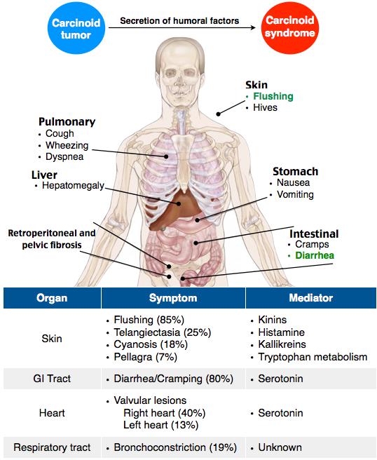 neuroendocrine cancer review)
