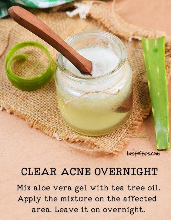Wish to treat acne and those pesky pimples with easy homemade recipes that work without fail  Use that aloe vera plant that you have in your garden patch and you will love the way it will take [   ] SkinCareAcneOvernight NaturalSkinCare is part of Clear acne overnight -