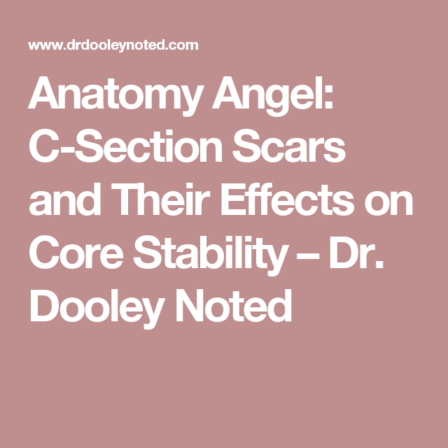 Anatomy Angel C Section Scars And Their Effects On Core Stability