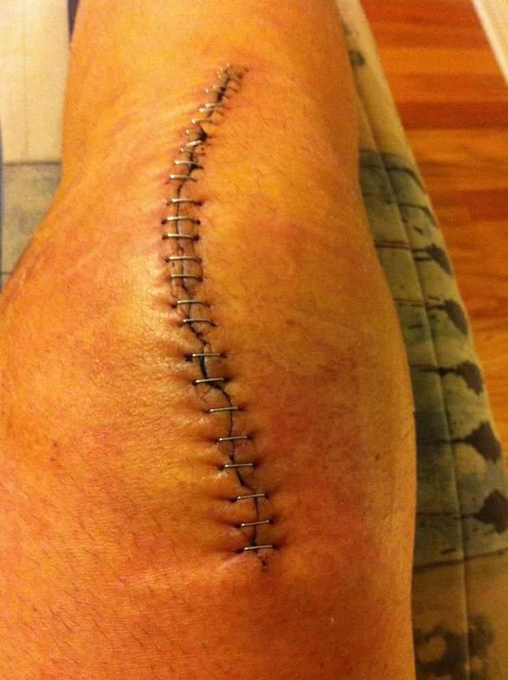 5 days after surgery knee replacement scars pinterest
