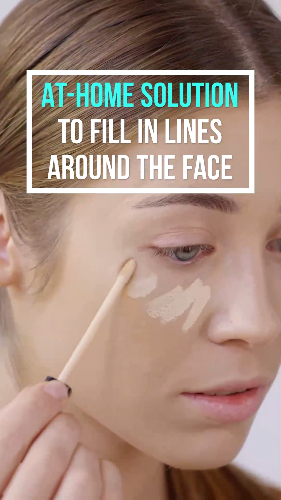 Pin On Acne Face Mapping