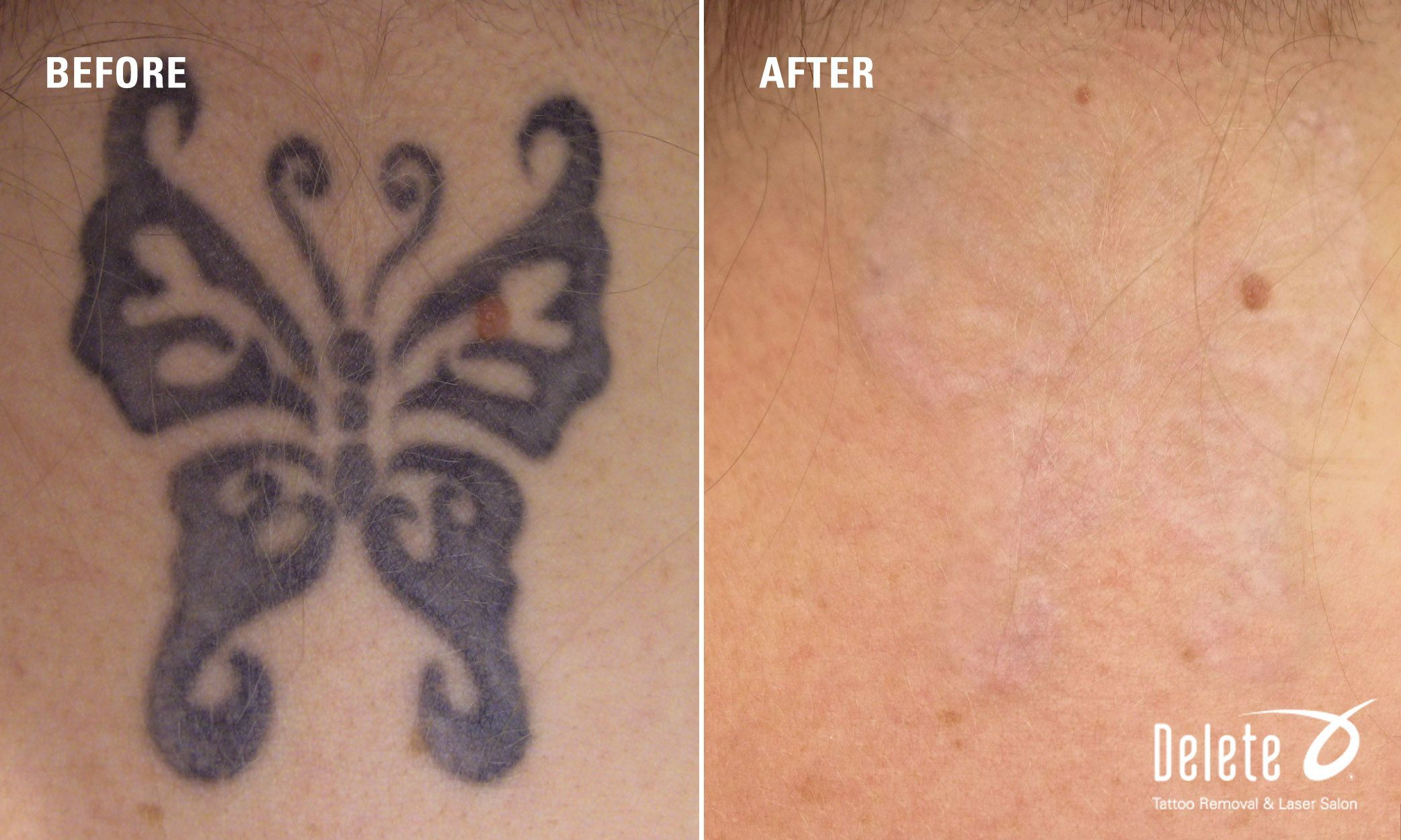 Black Tattoo On Back Of Woman S Neck Top Of Back Delete Currently Has Salons In Phoenix Az And Boston Ma Call For A Compl Back Tattoo Tattoos Black Tattoos