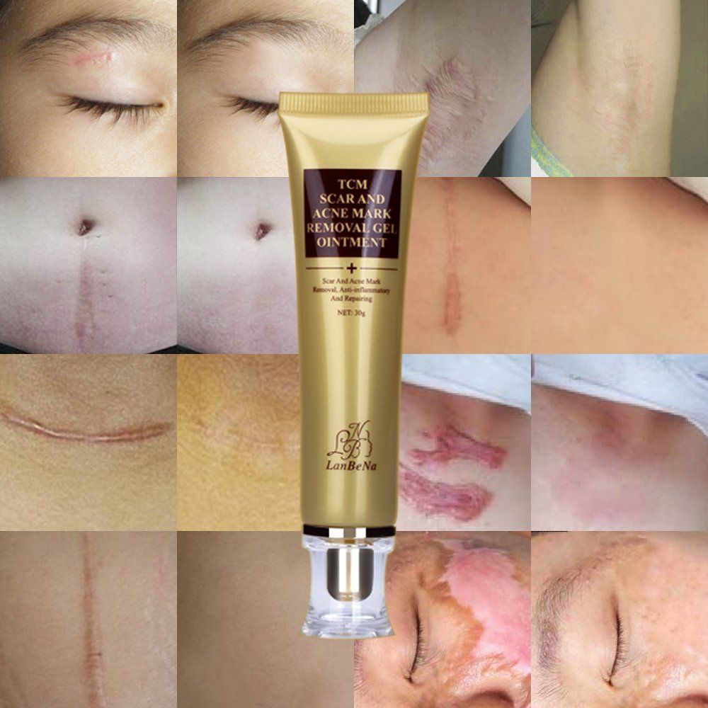 Acne Scar Removal Cream Stretch Marks Face Skin Whitening Repair