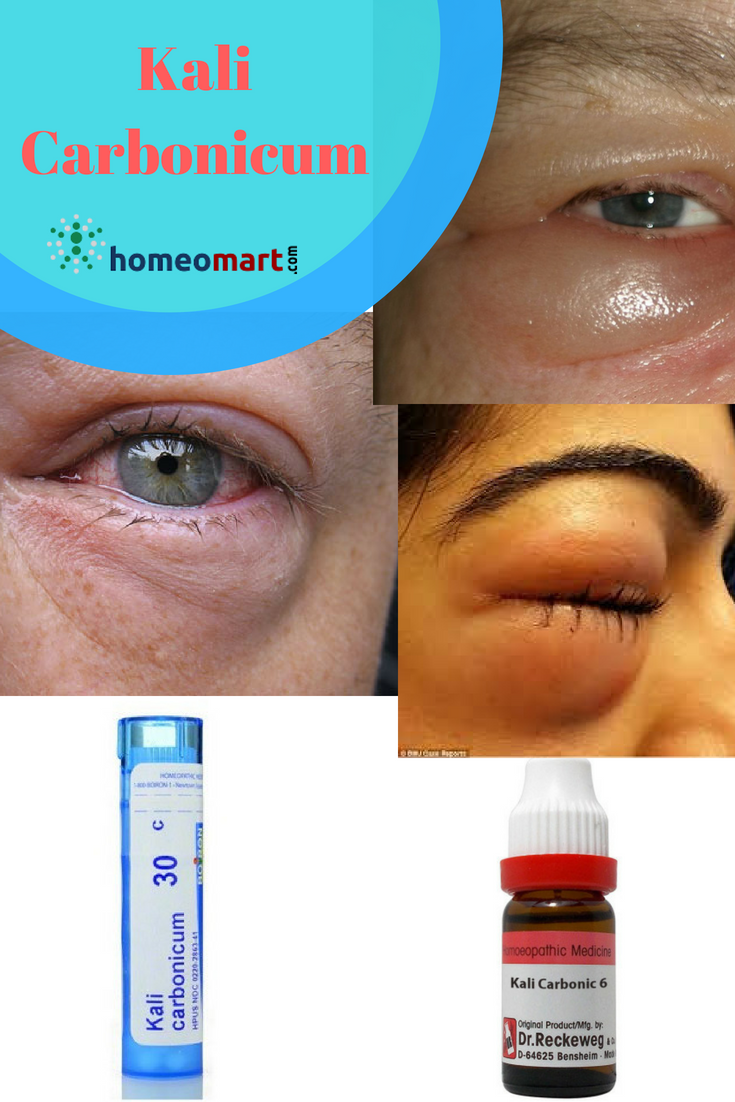 For Swelling Between And Brows Rubric In Phataks Repertory Under Eye Was Referred Kali Carb Given 30 Potency After Week Patient Reported