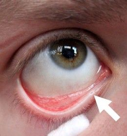 anaemia and eyes