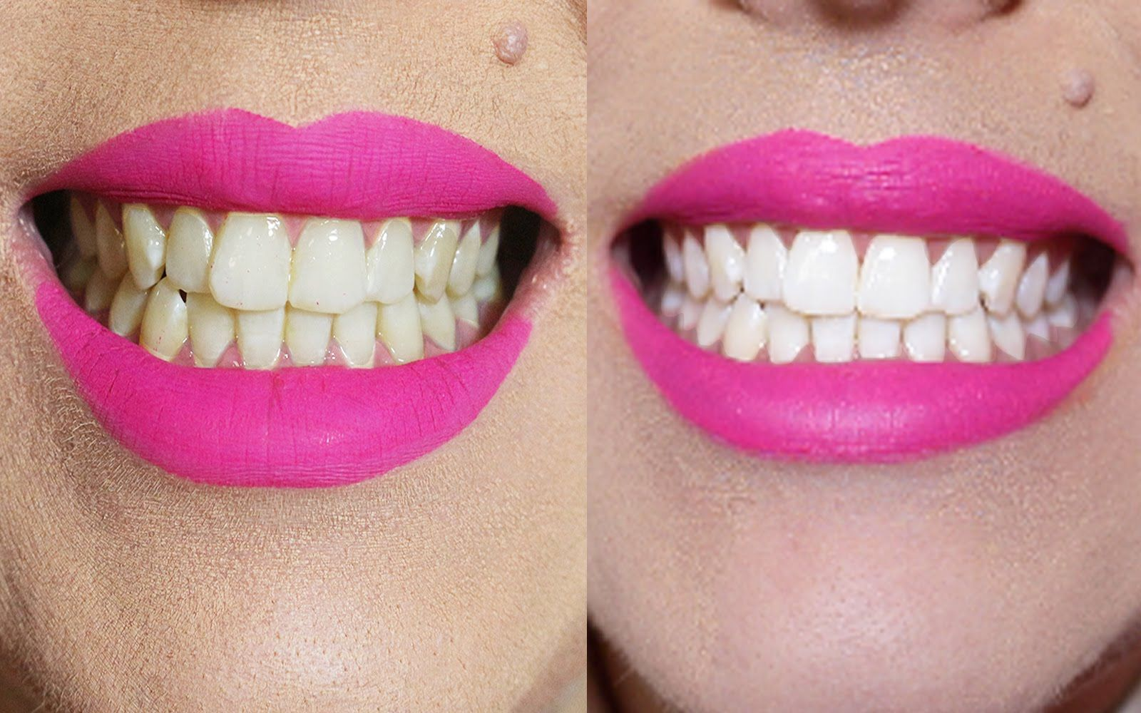 Dentes Brancos Em 2 Minutos Receita Caseira Remedios Caseiros