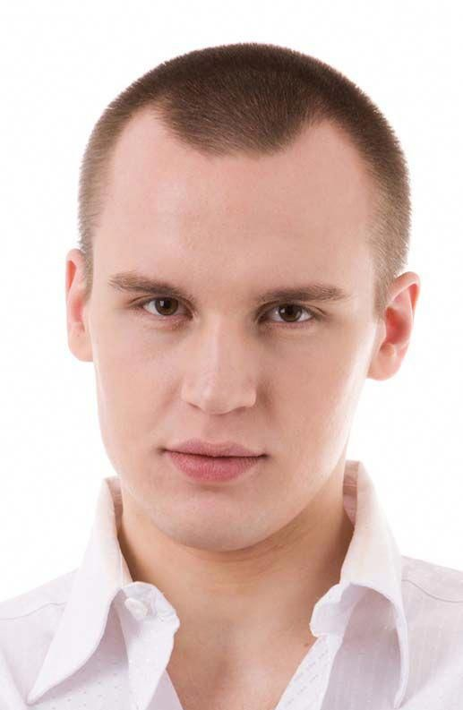 Six Ways To Prevent Hair Loss Haircuts For Men Receding