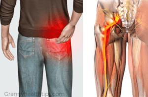 Como Aliviar El Nervio Ciatico Capri Pants Remedies