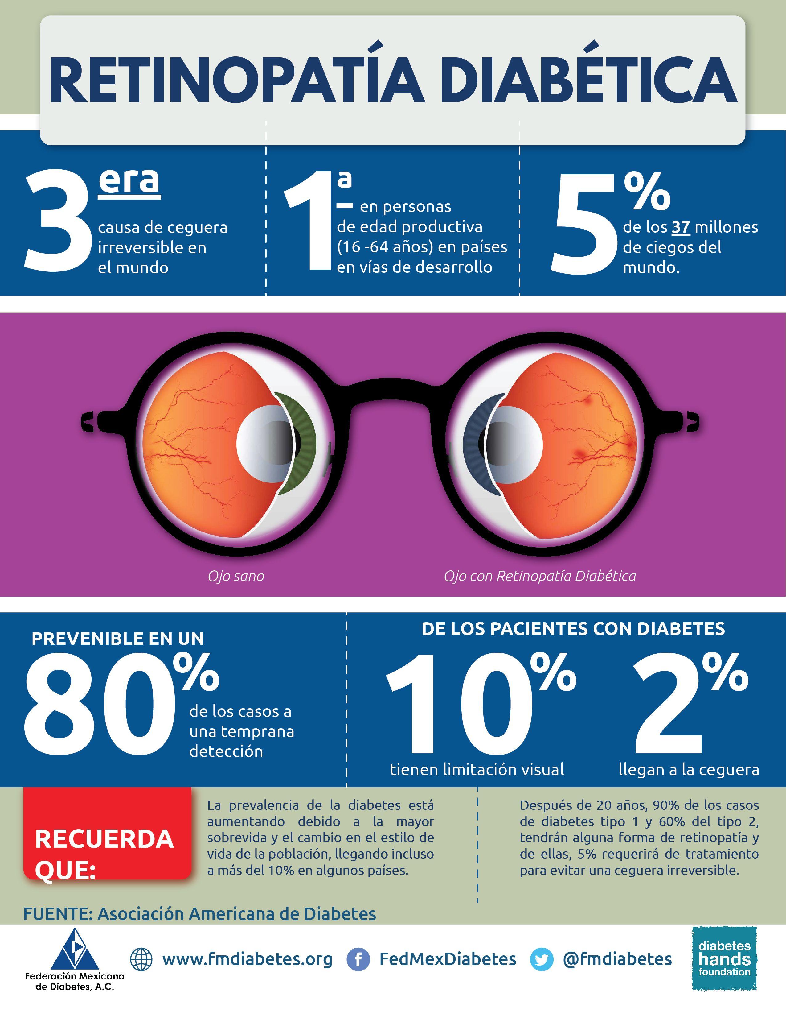 Estadísticas de la retinopatía diabética   Salud Visual   Pinterest ...