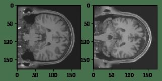 Reconstructing Brain MRI Images Using Deep Learning (Convolutional
