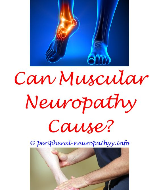 what level of compression socks do i need for neuropathy - neuropathy  clinic madison wi.