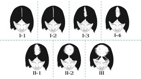 Alopecia Femminile: Caduta, Diradamento, Perdita Capelli ...