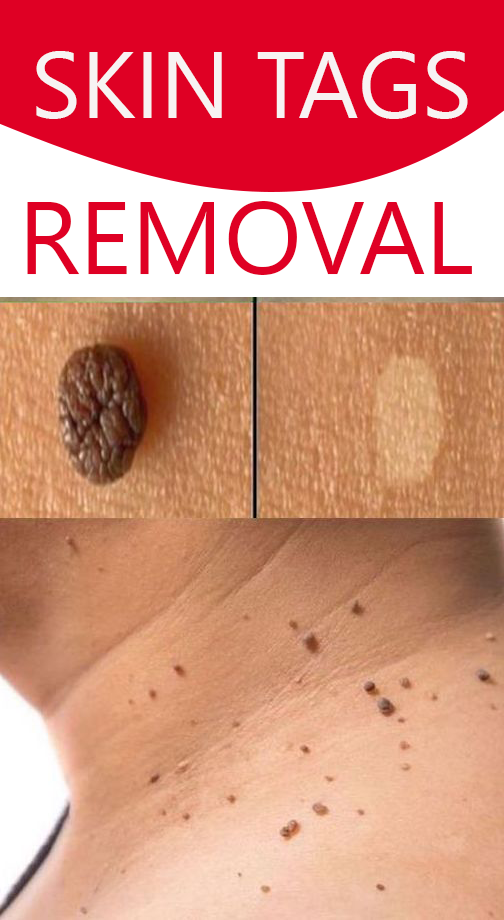 Skin tags are small and soft growths that naturally hang