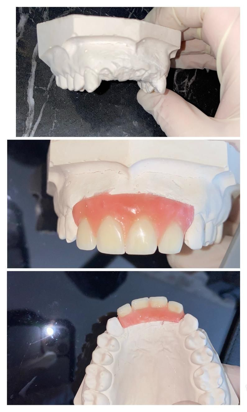 Diy Partial Denture Kit Dental Bridge Flipper Teeth Acrylic Etsy In 2020 Partial Dentures Dental Impressions Dental Adhesive