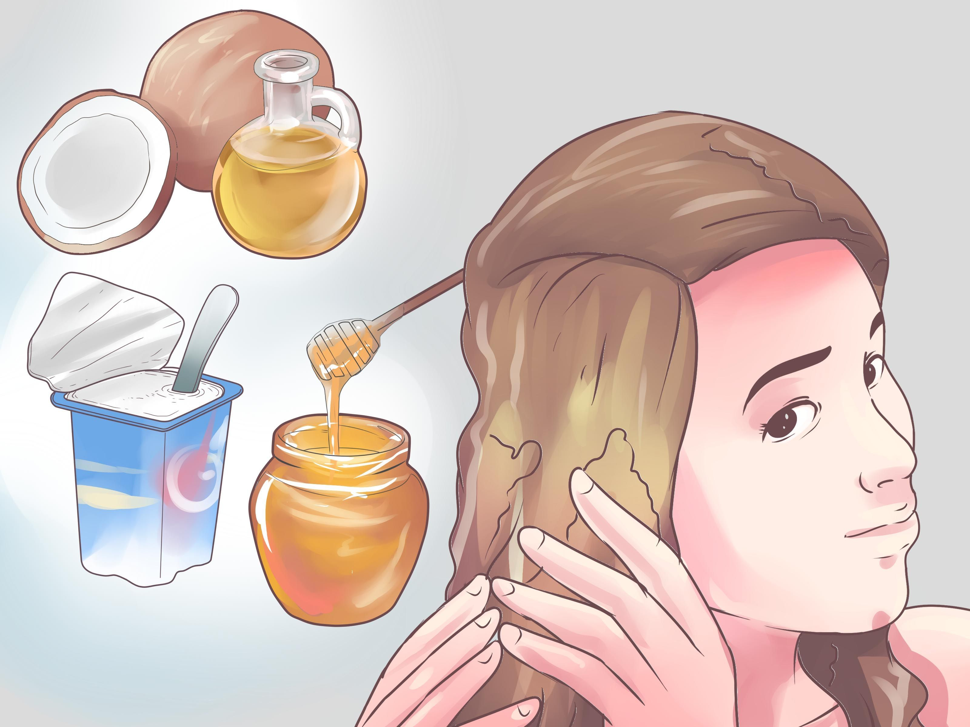 How to Get Rid of Dandruff (Natural Methods) -- via ...