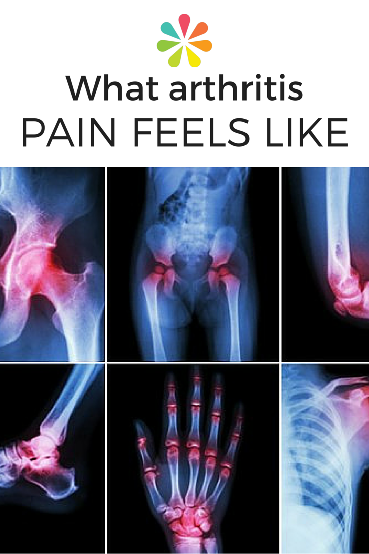 What Does Arthritis Pain Feel Like