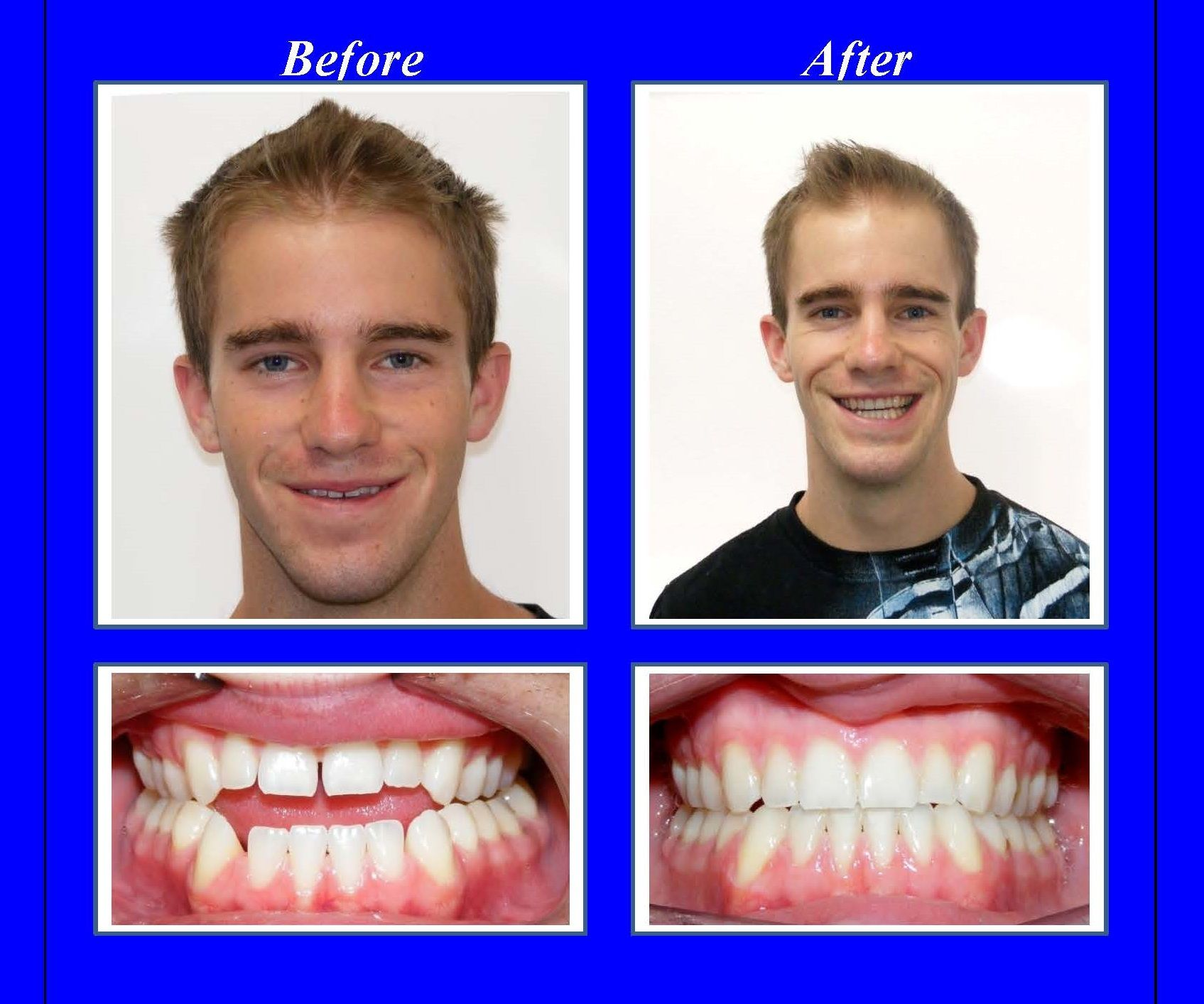 Notice how this young man's front teeth don't come