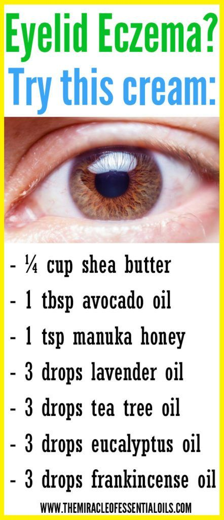 6 Essential Oils For Eczema On Eyelids Plus Healing Cream Recipe