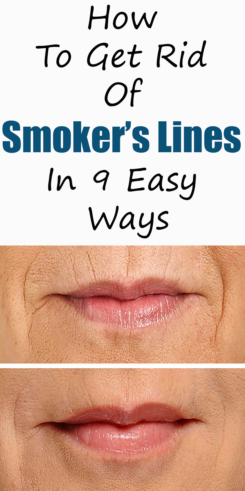 dde3d7ab0a0b8635d2662ebc9e5e80a9 - How To Get Rid Of Lines On The Lips