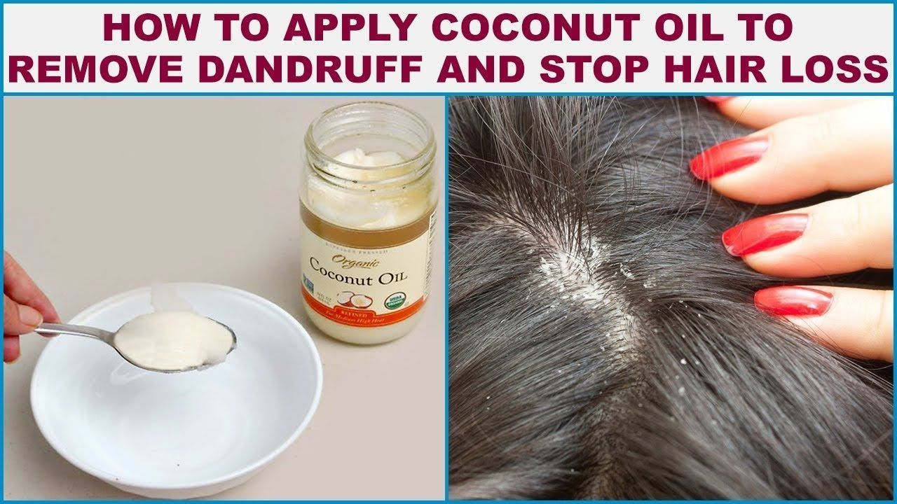 How to apply coconut oil to remove dandruff and stop hair