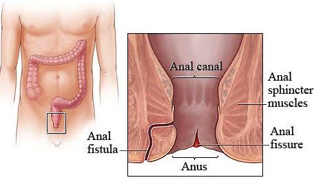 Fistula anal y perdida de peso causas