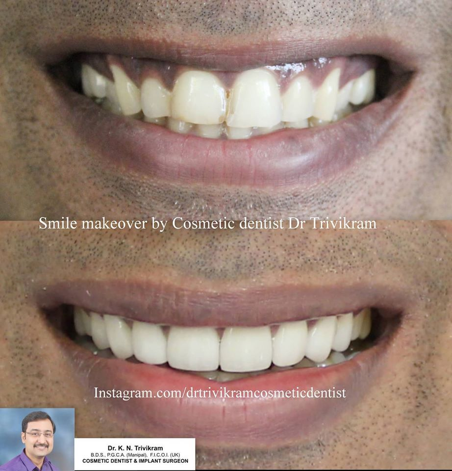 Follow drtrivikramcosmeticdentist this is case of 8