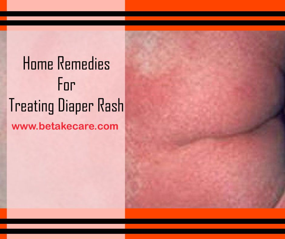 Diaper rashes are very common in babies you can find here