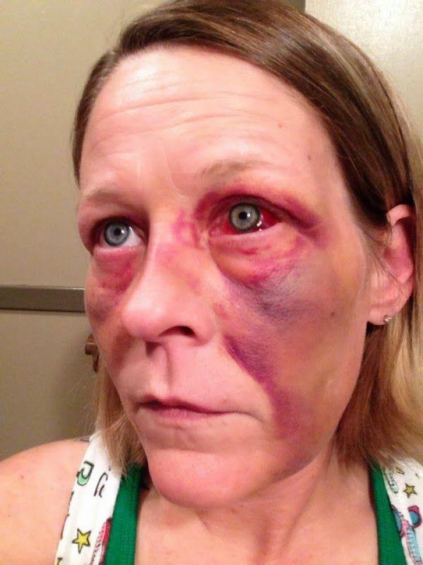 bruised face - Google Search | School stuffs | Pinterest ...