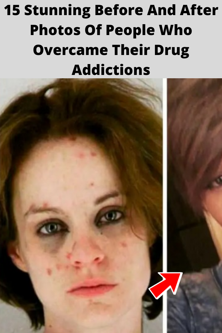 15 Stunning Before And After Photos Of People Who Overcame Their Drug Addictions