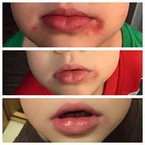 My Son Gets Very Chapped Lips And Skin During The Winter So