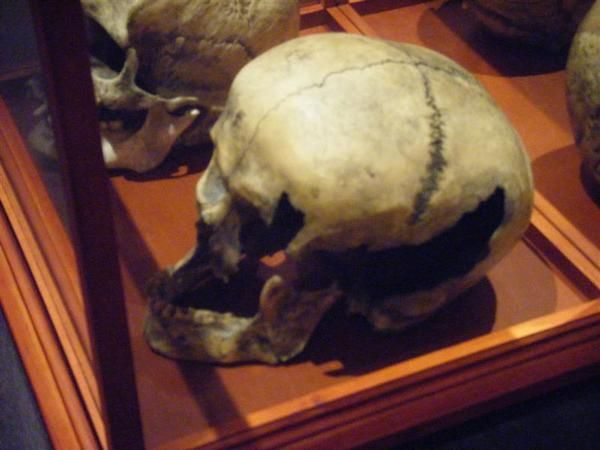Lizzie Borden's father's skull on display at Fall River Historical Society.