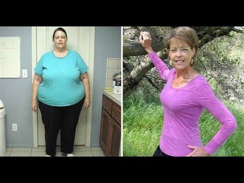 lose body fat without surgery