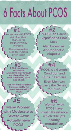 Pcos Symptoms Weight Gain Male Pattern Baldness Drop The Lbs