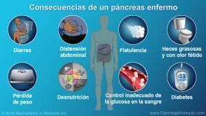 Sintomas de problemas no pancreas