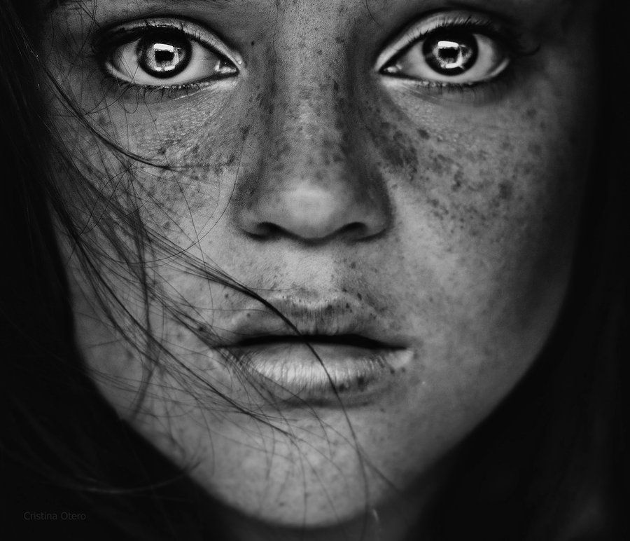 Black And White Portrait Freckles