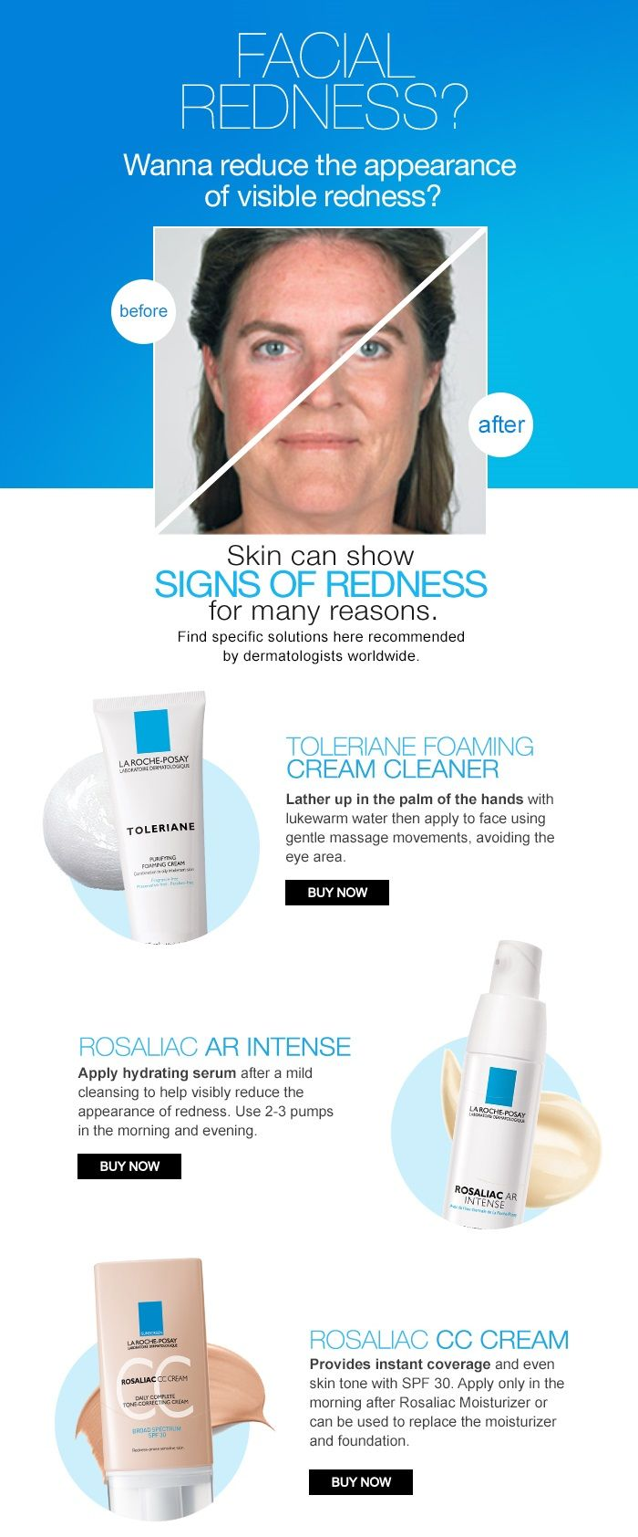 Rosaliac Ar Intense For Visible Facial Redness La Roche Posay In 2020 Redness Skincare For Oily Skin Skin Care Solutions