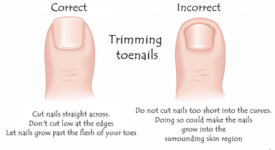 Tips To Provide Better Care For Your Nails Thick Toenails Prevent Ingrown Toe Nails Toe Nails