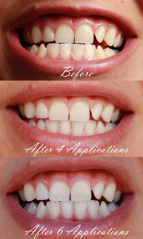Pin on dental surgery